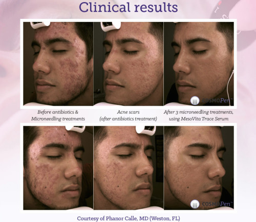 Clinical Results - Acne