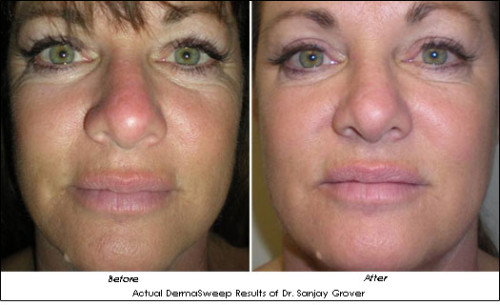 DermaSweep-Grover-B-A