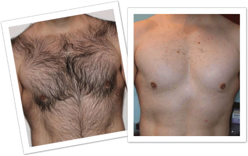 men-hair-chest-before-after