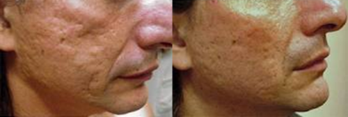 prp-acne
