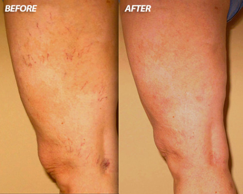 spider-vein-before-and-after-1