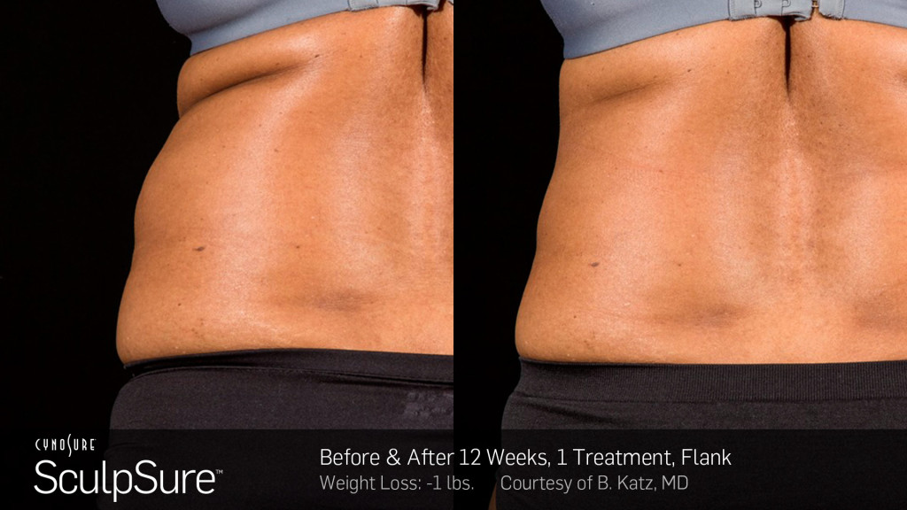 BA-SculpSure-B-Katz-Post-1Tx-12WKs-04