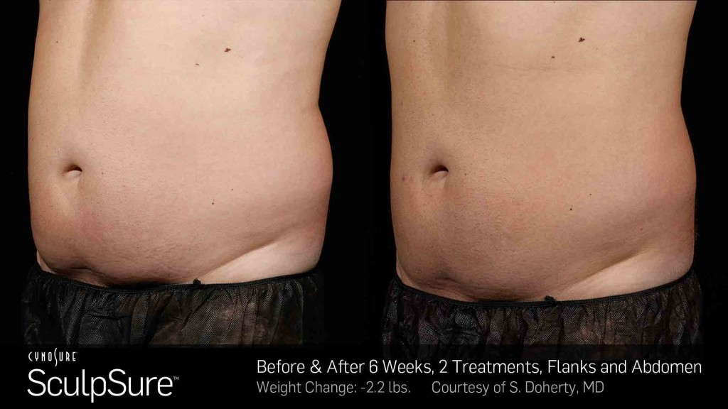 BA-SculpSure-S-Doherty-2TX-6WKs-2