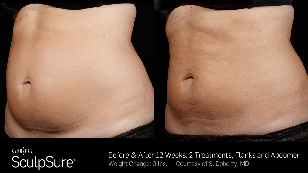 BA-SculpSure-SBS-Doherty-2TX-12WKs-2
