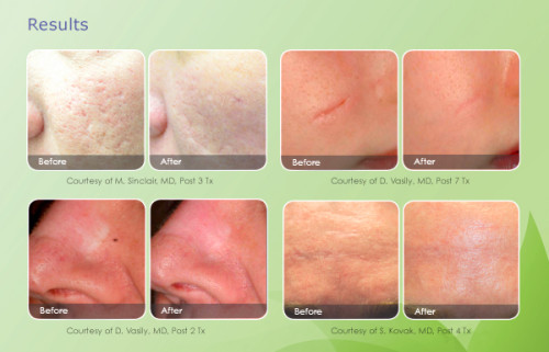 scar-removal-email-results-600x385