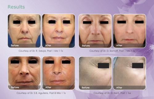 skin-resurfacing-email-results-600x385