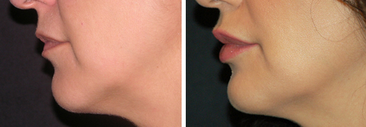 LIP-INJECTIONS-BEFORE-AFTER-TD-03-DUAL