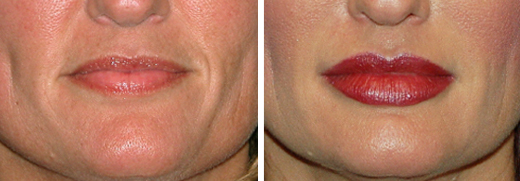 LIP-INJECTIONS-BEFORE-AFTER-TM-00-DUAL